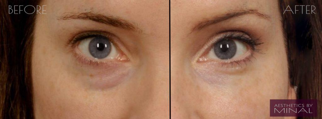 under eye dark circles - watford