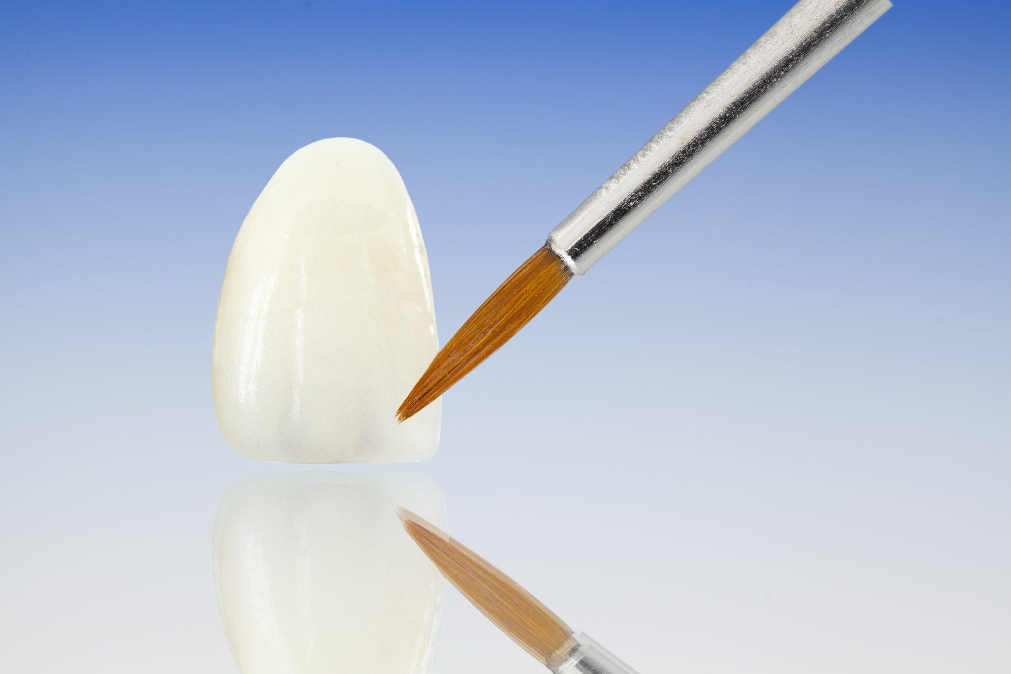dental veneers, dental crowns, white teeth, porcelain veneers