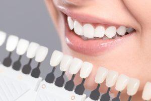 teeth whitening, teeth cleaning