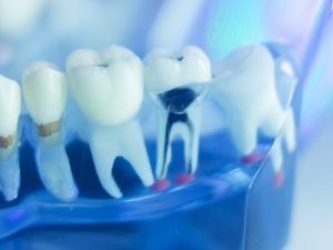 Root Canal Treatment Watford